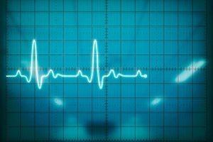 Eventprofs Heartbeat